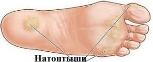лечение натоптышей